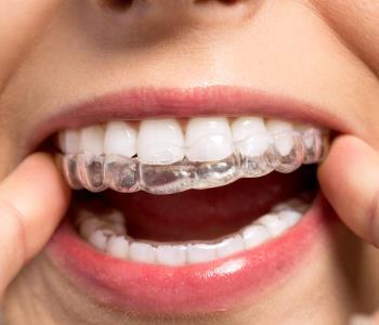 invisalign teeth braces from dentist in burlington