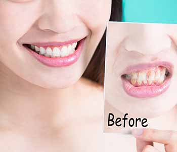 contact Dr. Gupta in Burlington, ON to ask about affordable smile enhancements with this experienced cosmetic dentist.