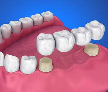 A cosmetic and restorative dentist can provide options for patients to choose from that can completely rejuvenate the appearance of the smile.