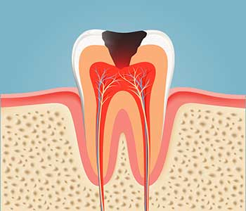 Restore oral heath with root canal treatment in Burlington, ON