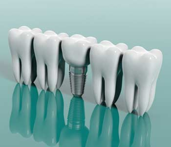 3D structure of a Dental Implant