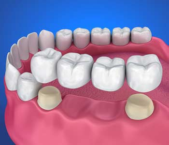 3D image of dental crown & bridge