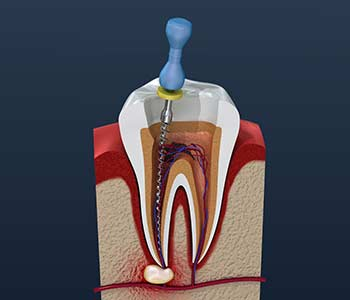 Why Do I Need Root Canal Therapy in Burlington ON area
