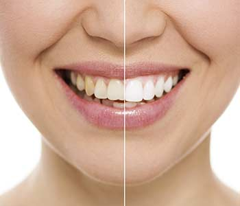 Should I use teeth whitening in Burlington area