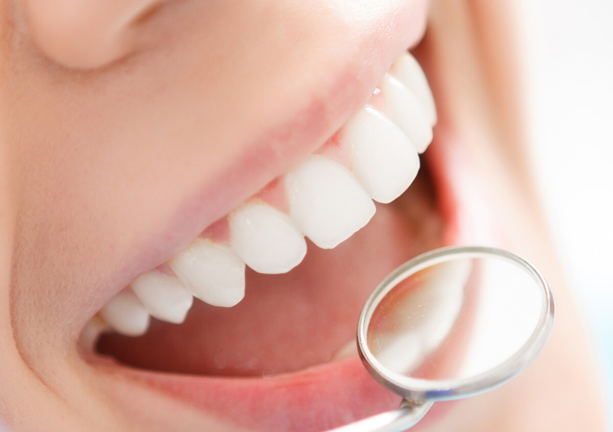 What to Expect from Tooth Crown Services in Burlington Area