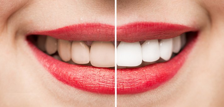 Dentist Burlington ON - Before and After Teeth Whitening
