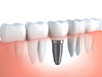 Dental Implants Burlington ON - Implant, Illustration