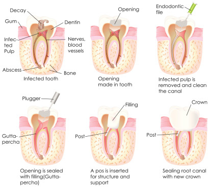 Root Canal Burlington ON - Root Canal Procedure