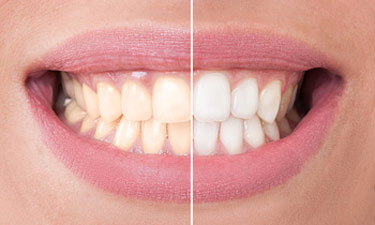 Teeth Whitening Burlington ON - Before and after Teeth whitening